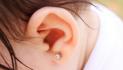 Correção de orelha de abano dispensa cirurgia