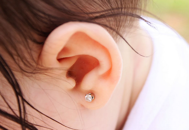 Correção de orelha de abano dispensa cirurgia 11